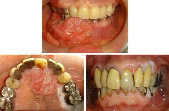 口腔癌 口腔癌はどれくらいあるの? 口腔癌は、全身の癌の数%と報告され、そう多... 口腔腫瘍
